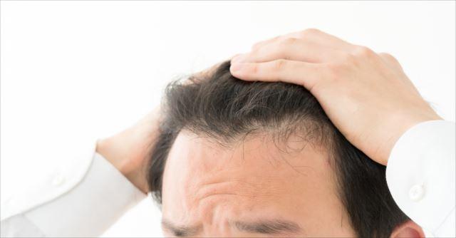 薄毛の原因は体質の変化?正しいaga治療の方法を理解しよう!